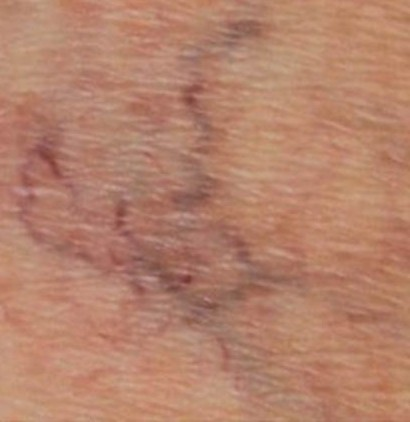 Vein Removal Before