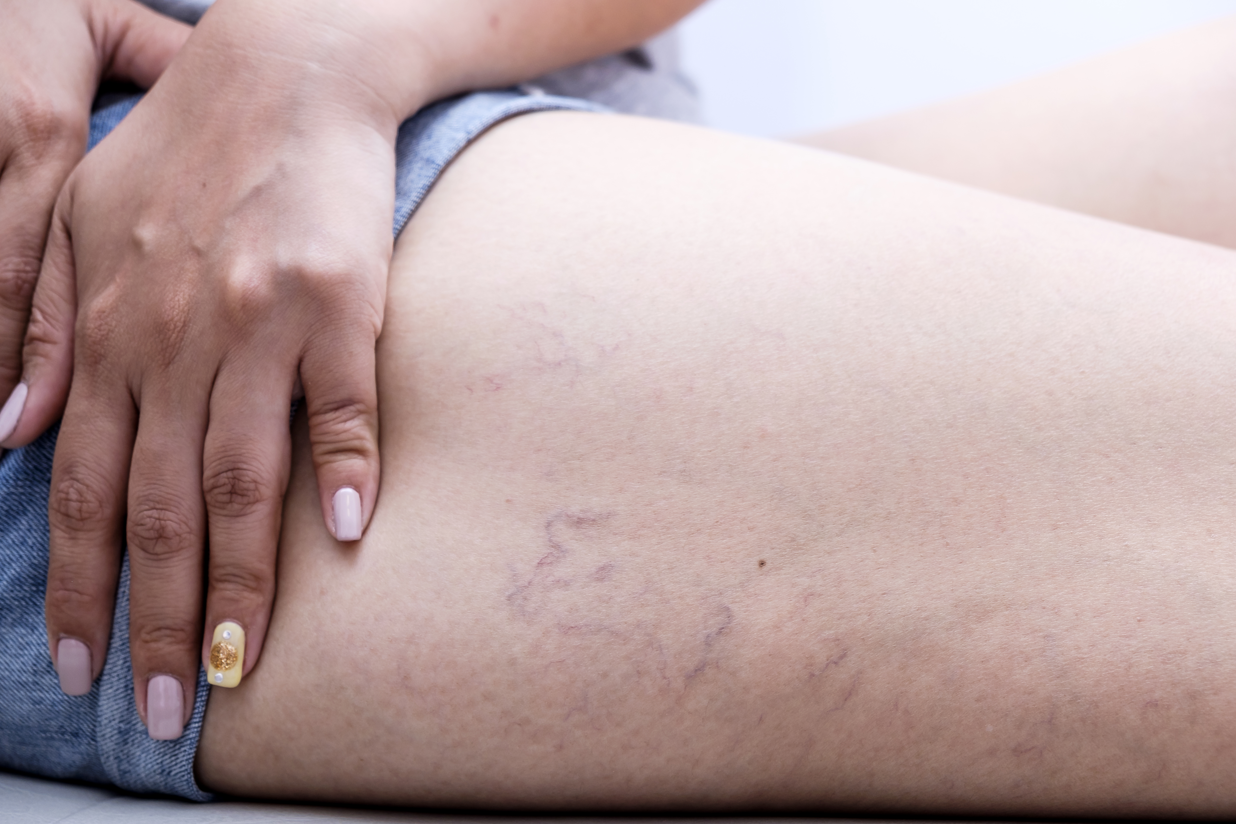 What You Need To Know About Vein Removal